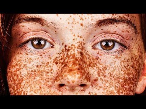 Почему на теле и на лице веснушки