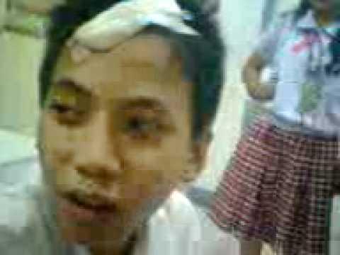 Ano ang gagawin sa buhok pagkawala sa ulo