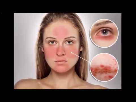 Atopic dermatite infantil