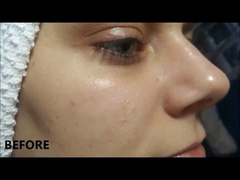 A Facial Cleanse: Before and Immediately After
