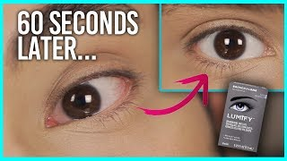 Get Rid of Red Eyes in 1 minute | Does Lumify work?