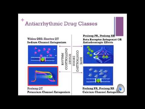 Video Cardiology:  Drug Induced Long QT syndrome (aLQTS)