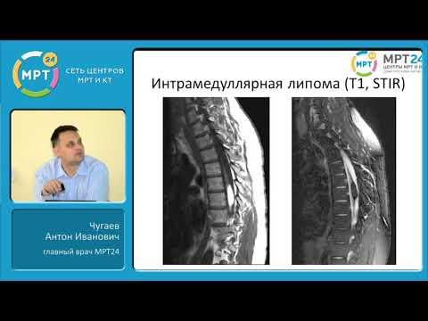 Боли в спине под лопатками причины лечение