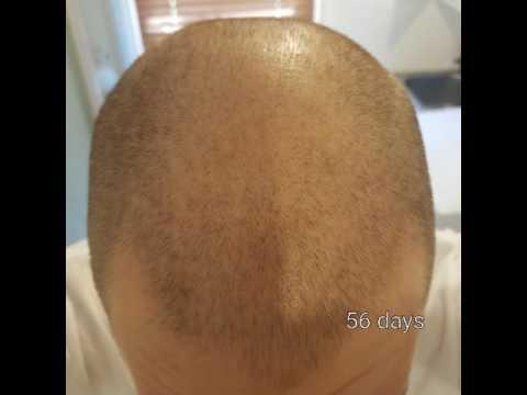 Bumili ng mga tool para sa creative hair straightening