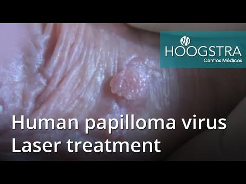 Human papillomavirus infection vaccine side effects