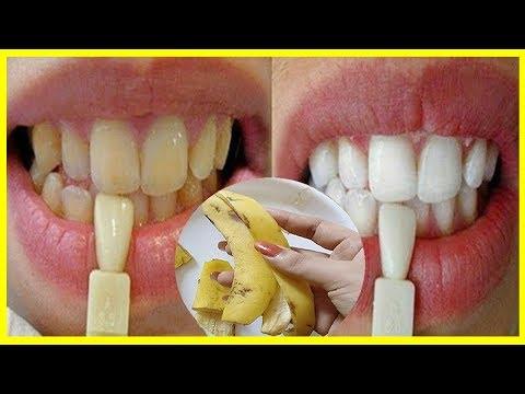Ouvir Musica Em Apenas 2 Minutos Veja Seus Dentes Amarelos Ficarem