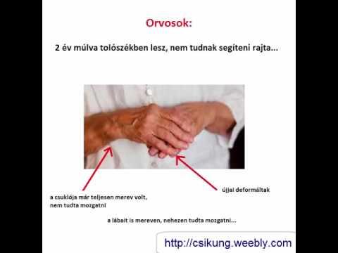 Súlyosbodás az artrózis kezelésében