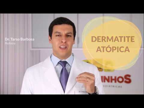 Do que tratar uma coceira de eczema