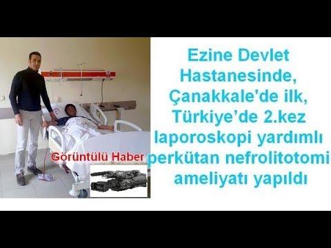 Çanakkale'de ilk, Türkiye'de 2.kez laporoskopi yardımlı perkütan nefrolitotomi ameliyatı yapıldı