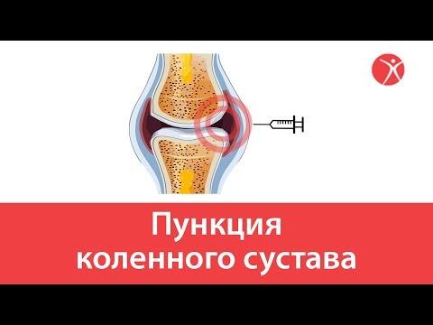 Осложнения разрыва связок коленного сустава