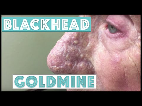 A Goldmine of Blackhead & Whitehead Extractions
