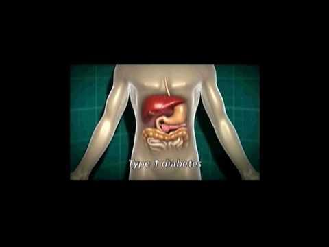 Diabetes mellitus Präsentation