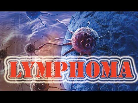 Thrombophlebitis ของการวิเคราะห์แขนขาลดลง