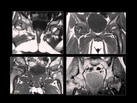Inflamación del nervio ciático de la articulación de la cadera