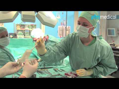 Behandlung der indischen Zwiebeln Gelenke