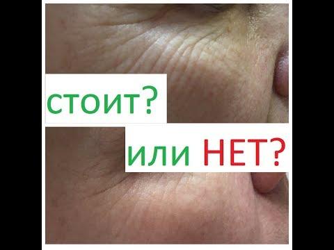Мезотерапия вокруг глаз от от мешков и морщин под глазами. Как выбрать? Чего опасаться?