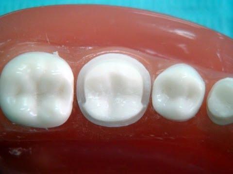 "Metal ceramic crown preparation "" for dental students """