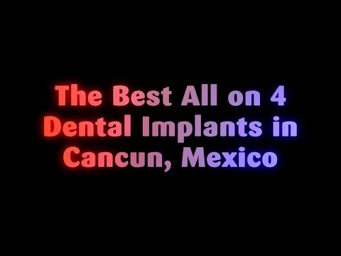 The Best All on 4 Dental Implants in Cancun, Mexico