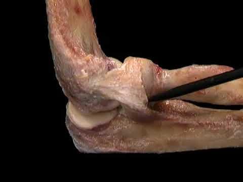 La artritis de la rodilla si se puede ejecutar