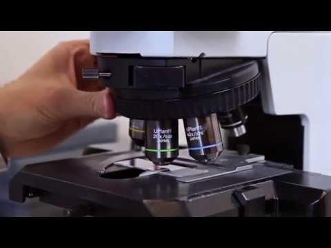 Come emorroidi esterne e interne di unocchiata di fotografia