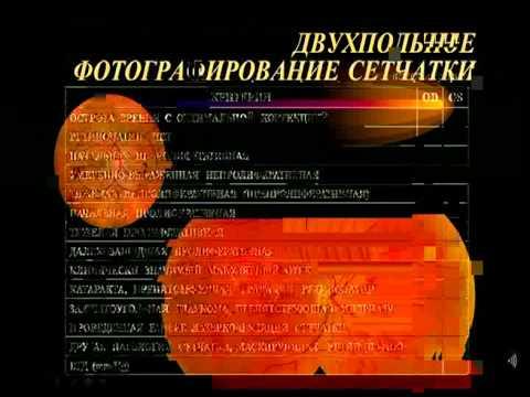 Кръв за измерване на захар устройство Харков