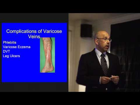 Quali sintomi a varicosity di posizione di vene