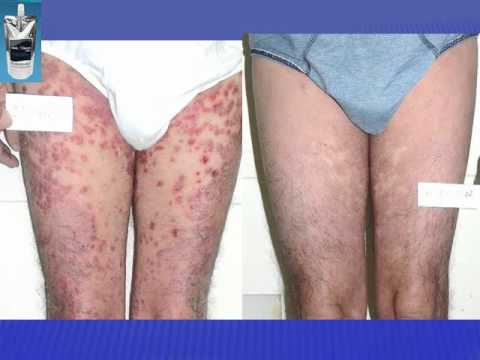 Posti bianchi a dermatite atopic