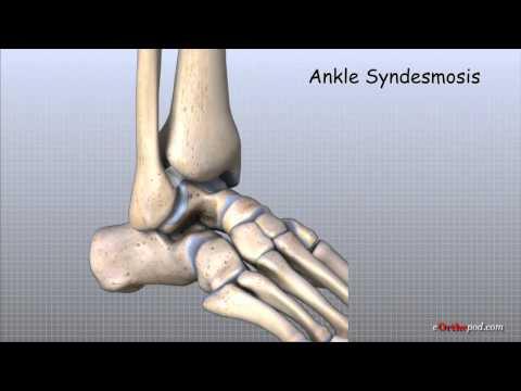 Schmerzen im Unterleib auf der linken Seite und zurück bei Frauen senken