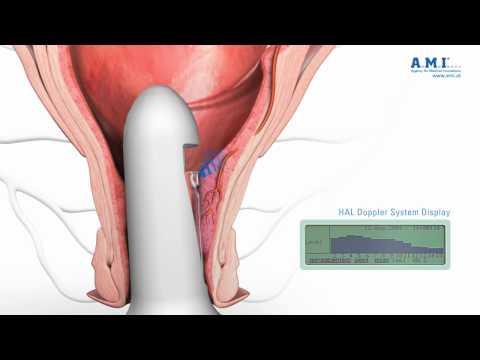 Punkt für die Einstellung Blutegel Prostatitis