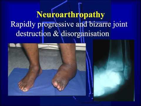 Gonartroza istoricului medical al genunchiului 3 grade