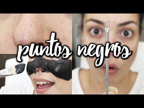 Elimina tus puntos negros y poros abiertos DE VERDAD | Pretty and Olé