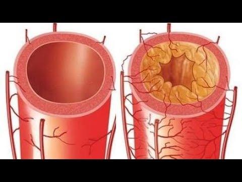 Единственный способ чистки сосудов (артерий и вен)