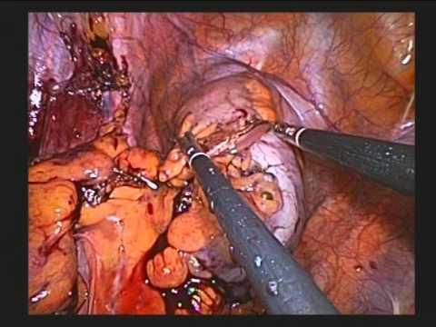 Wie die Würmer bei der Aufnahme nemosola hinausgehen