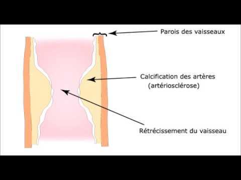 La hausse de la veine sur le pied est plus basse que le genou