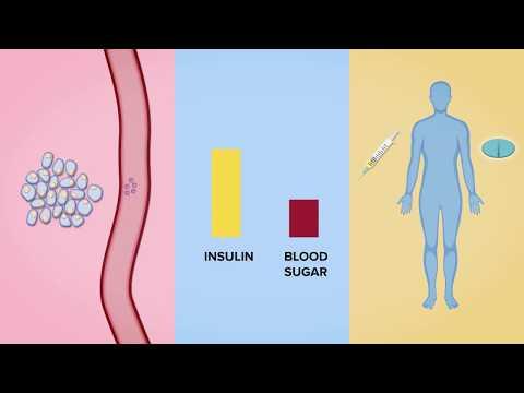 Hypertension 3 Risikograde 4, dass es eine Behinderung