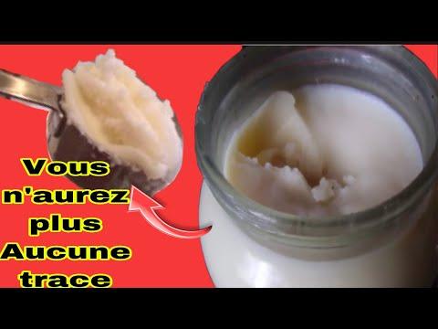 Ce produse pot fi consumate cu varicoză