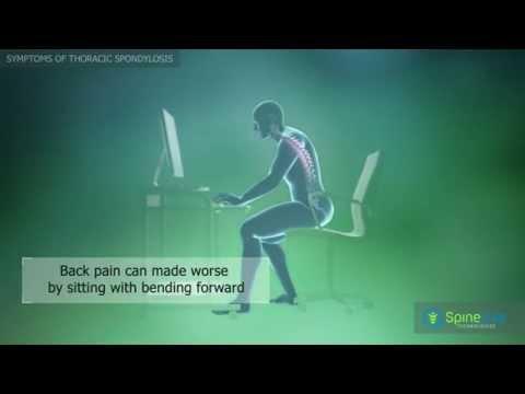 Video Thoracic spondylosis. Symptoms