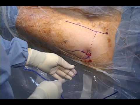Portal Placement in Hip Arthroscopy