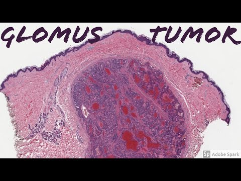 filum nemathelminthes dan contohnya
