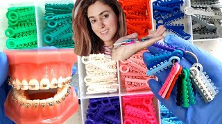 How To Choose The Correct Brace Color(s) For You!