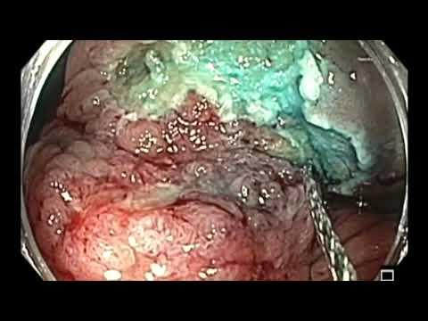 Kolonoskopia: resekcja polipa okrężnicy wstępującej przyrośniętego do ściany z powodu dwukrotnej niepełnej resekcji