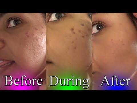 Azelaic acid cream laban pigment spots