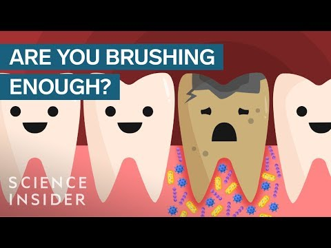 Here's What Happens If You Stopped Brushing Your Teeth