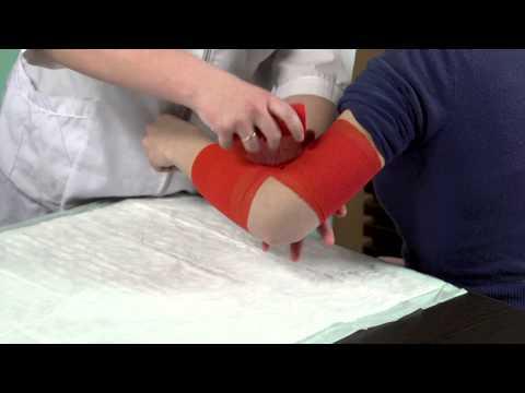 Начальный артроз шейного отдела позвоночника