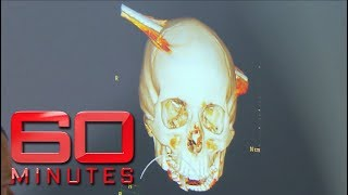 Teen survives after steel pole speared through skull | 60 Minutes Australia
