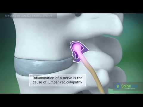 Cintura per un portamento a osteochondrosis