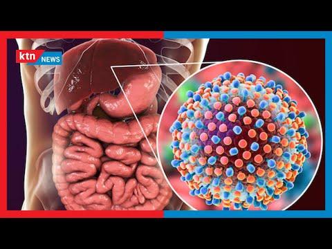Suala Nyeti: Ulimwengu waadhimisha siku ya maradhi ya Hepatitis. Je, Hepatitis ni nini?