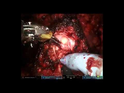 La preparazione per la prostata transrettale come si fa
