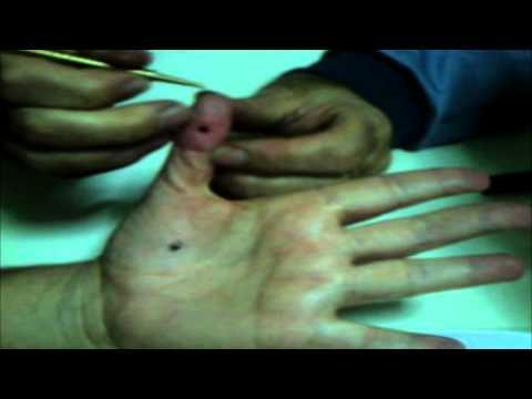 Terapia ormonale per il cancro alla prostata di grado 3