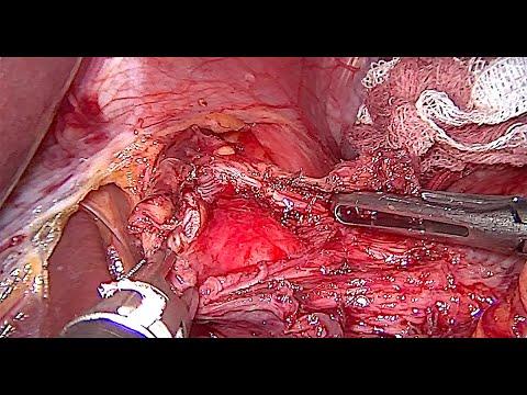 Laparoscopic Heller Cardiomyotomy with Dor Fundoplication